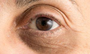Por que uma noite mal dormida pode causar olheiras no dia seguinte?