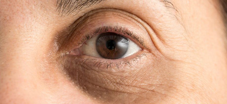 Imagem do post Por que uma noite mal dormida pode causar olheiras no dia seguinte?