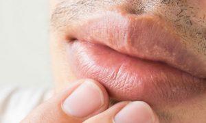 É possível transmitir o herpes mesmo sem a presença de feridas?