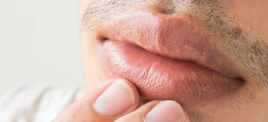 Imagem do post É possível transmitir o herpes mesmo sem a presença de feridas?