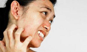 A água dermatológica pode aliviar o desconforto de reações alérgicas leves na pele?