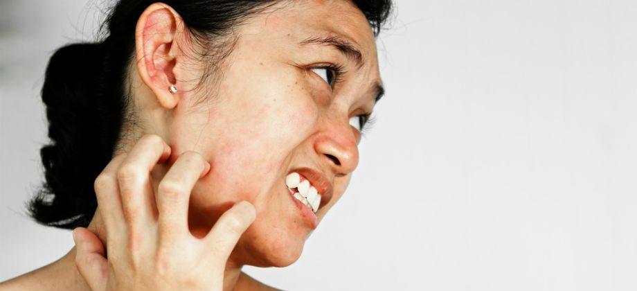 Imagem do post A água dermatológica pode aliviar o desconforto de reações alérgicas leves na pele?