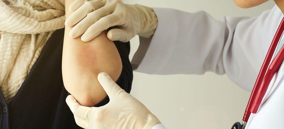 Imagem do post Psoríase: É possível se prevenir dessa doença de pele?