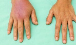 Uma inflamação não tratada pode se agravar?