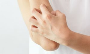 Coçar as feridas da dermatite pode piorar o quadro da doença?