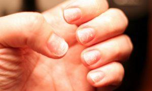 Que medidas são indicadas para tratar a síndrome das unhas frágeis?