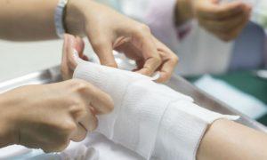 Como aliviar as dores causadas por leves queimaduras?