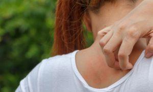 Dermatite atópica não é contagiosa e tem tratamento. Você sabia?