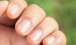 Homens também podem sofrer com a síndrome das unhas frágeis?