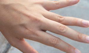 Você sabia que interromper o tratamento pode prejudicar a saúde das suas unhas?