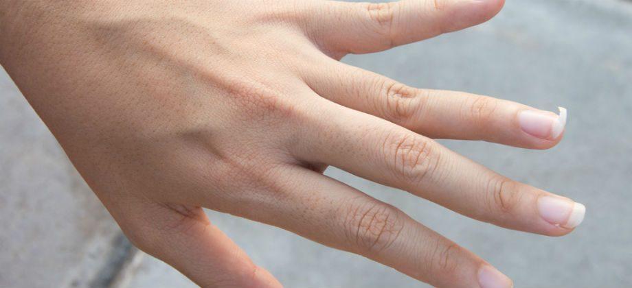 Imagem do post Você sabia que interromper o tratamento pode prejudicar a saúde das suas unhas?