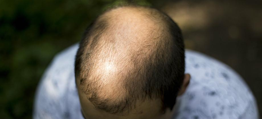 Imagem do post Calvície: em quanto tempo é possível ver os primeiros resultados do tratamento?