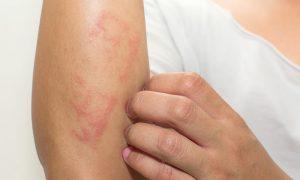 Por que condições como eczema causam coceira na pele?