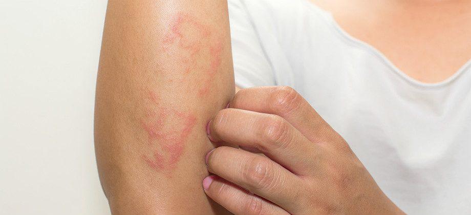 Imagem do post Por que condições como eczema causam coceira na pele?