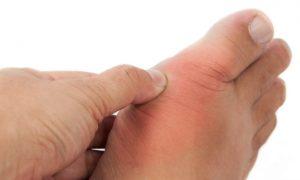Gota tem cura? Como fazer para controlar as crises dolorosas?