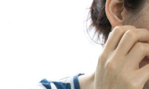 O que é a dermatite seborreica de face? Como é o tratamento?
