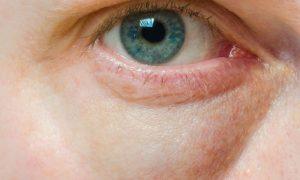 Cuidados com a pele: Quais hábitos do dia a dia podem ajudar a evitar olheiras?