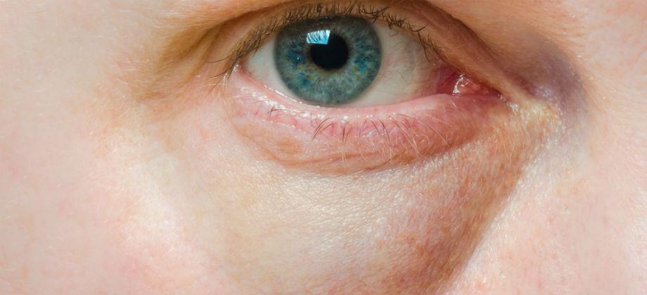 Imagem do post Cuidados com a pele: quais hábitos do dia a dia podem ajudar a evitar olheiras?