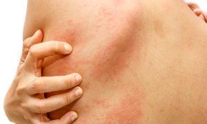 Coçar a urticária pode piorar o quadro? Dermatologista explica!