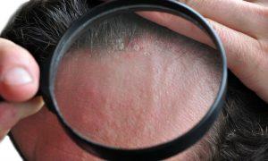Dermatite seborreica pode acontecer em quais partes do corpo?