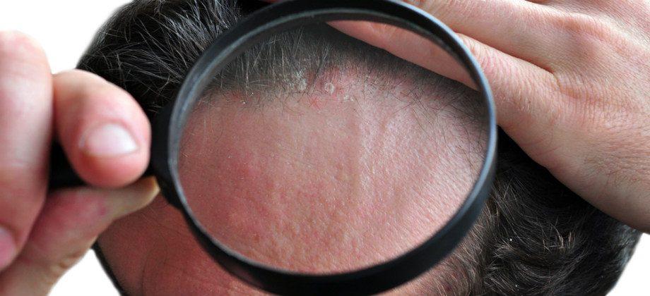 Imagem do post Dermatite seborreica pode acontecer em quais partes do corpo?