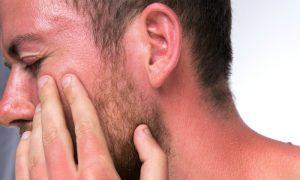 Queimadura de sol: o que fazer para aliviar a dor na pele após a praia?