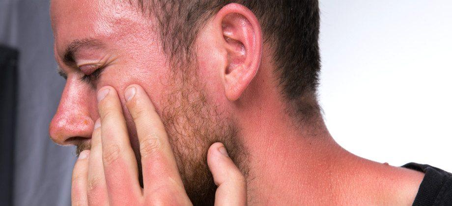 Imagem do post Queimadura de sol: o que fazer para aliviar a dor na pele após a praia?