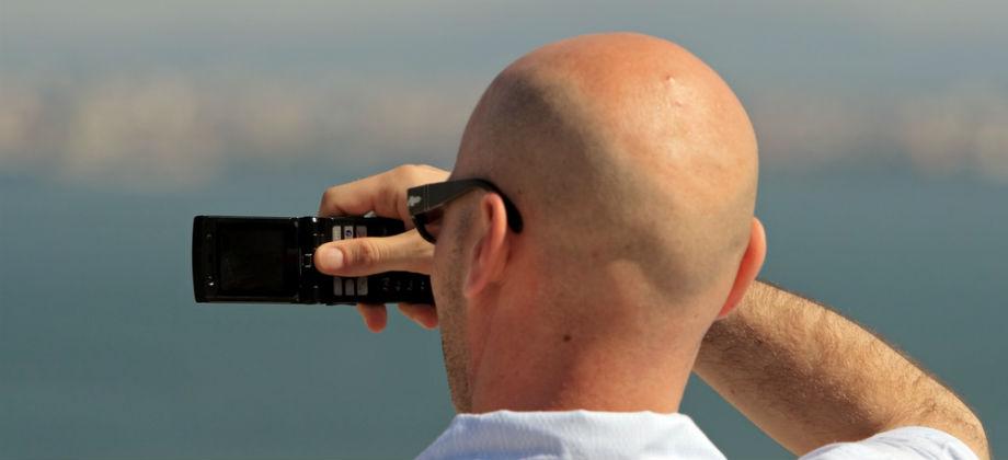 Calvície: A falta de cabelo pode deixar o couro cabeludo desprotegido contra o sol?