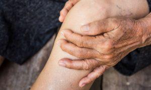 Aposentada controla osteoartrite há mais de 10 anos com medicação