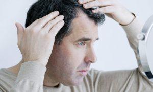 Queda de cabelo! Quais são os produtos que realmente levam à calvície?