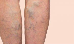 Varizes: problema pode voltar se o tratamento for abandonado?