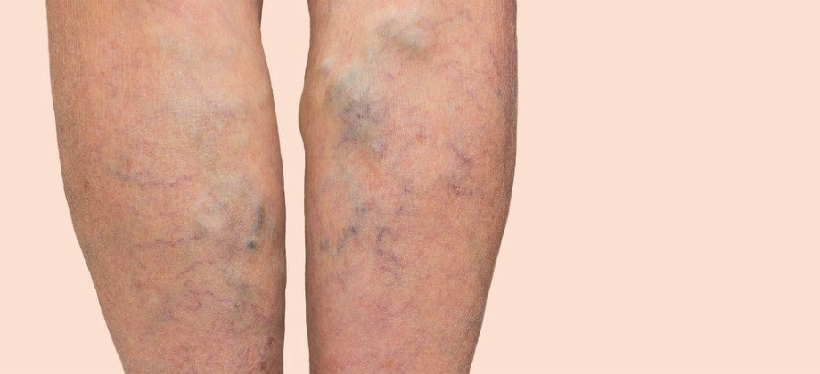 Imagem do post Varizes: problema pode voltar se o tratamento for abandonado?