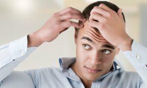 Por que a calvície é mais comum em homens?