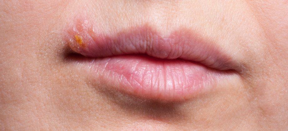 Imagem do post Um paciente com herpes labial pode ter manifestações do herpes genital?