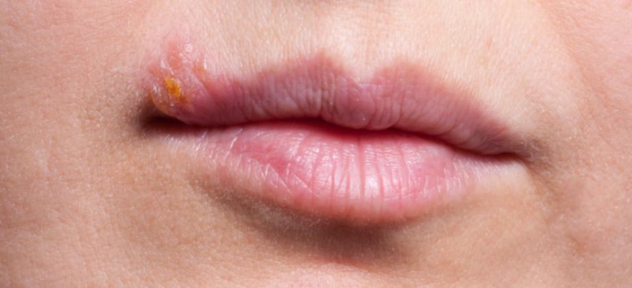Um paciente com herpes labial pode ter manifestações do herpes genital?