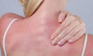 Como é o processo de recuperação da pele após queimaduras solares?