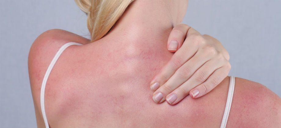 Imagem do post Como é o processo de recuperação da pele após queimaduras solares?