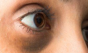 Quais são os principais tipos de olheiras? Saiba mais!