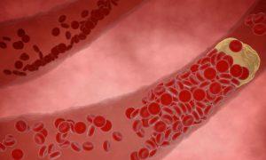 Qual é o papel dos radicais livres na formação de placas de gordura nas artérias?