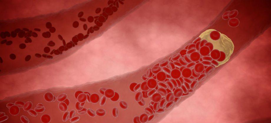 Imagem do post Qual é o papel dos radicais livres na formação de placas de gordura nas artérias?