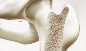 A osteoporose atinge todos os ossos igualmente?