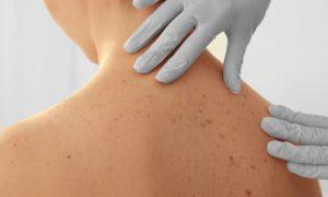 Como saber se uma mancha na pele é perigosa para a saúde?