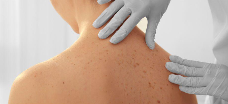 Imagem do post Como saber se uma mancha na pele é perigosa para a saúde?