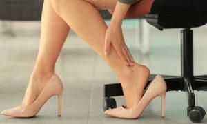 Queimação nas pernas é o único sintoma das varizes?