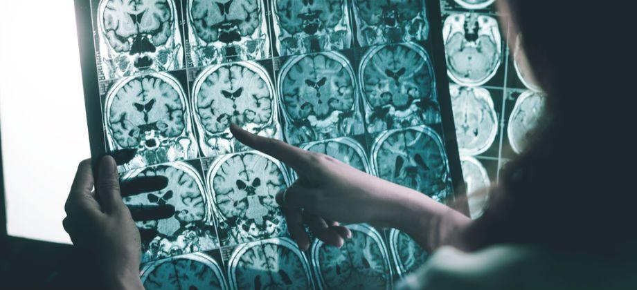 Imagem do post Quais são as consequências do abandono do tratamento de Alzheimer? A doença pode acelerar a progressão?