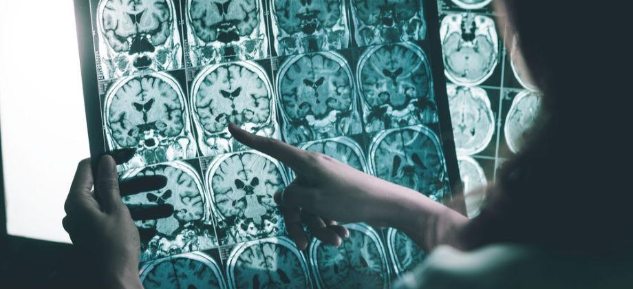 Quais são as consequências do abandono do tratamento de Alzheimer? A doença pode acelerar a progressão?