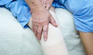 Professora trata osteoartrite e osteoporose para se livrar de dores