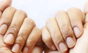 Biotina: saiba como essa vitamina age no tratamento da síndrome das unhas frágeis