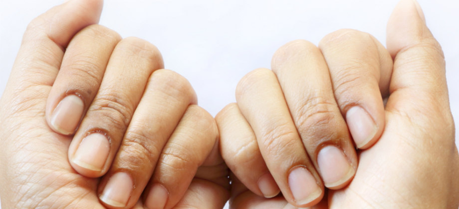Biotina: saiba como age essa substância no tratamento da síndrome das unhas frágeis