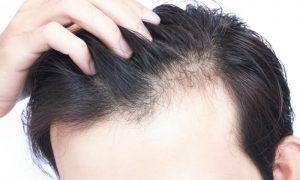 Calvície: como saber se temos tendência à queda de cabelo?